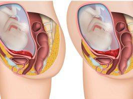 moderkakan ligger lågt placerad i livmodern