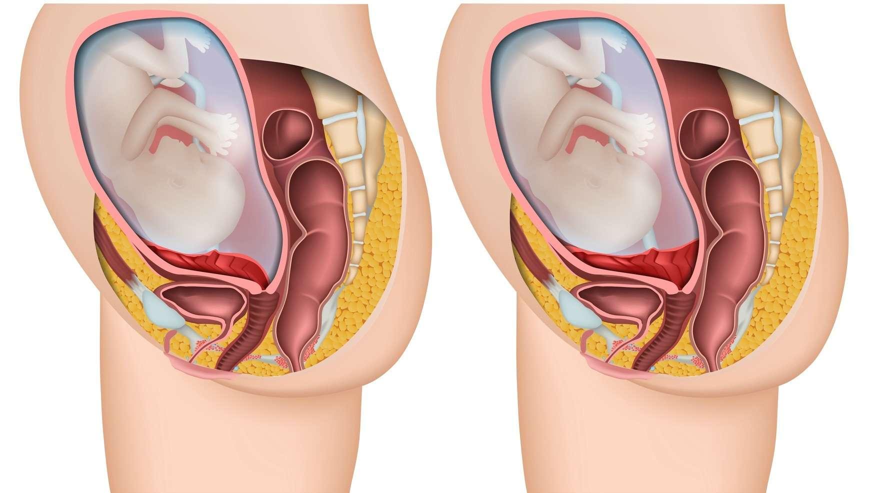 vanligt med blödning tidig graviditet